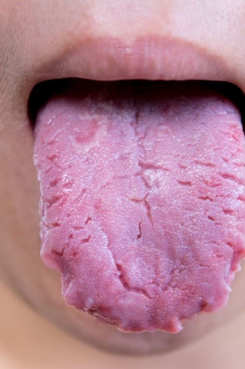 cracked tongue